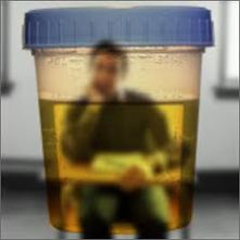 This urine sample was obtained from PeeAndre Hopkins' hotel room. Via.